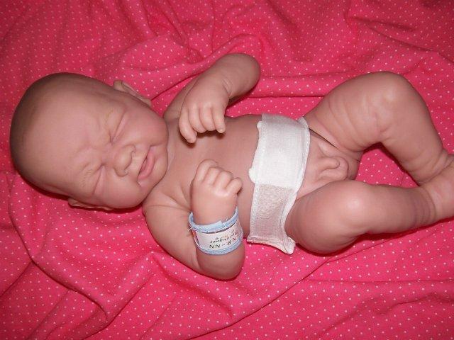 Фимоз у детей – причины, симптомы, лечение
