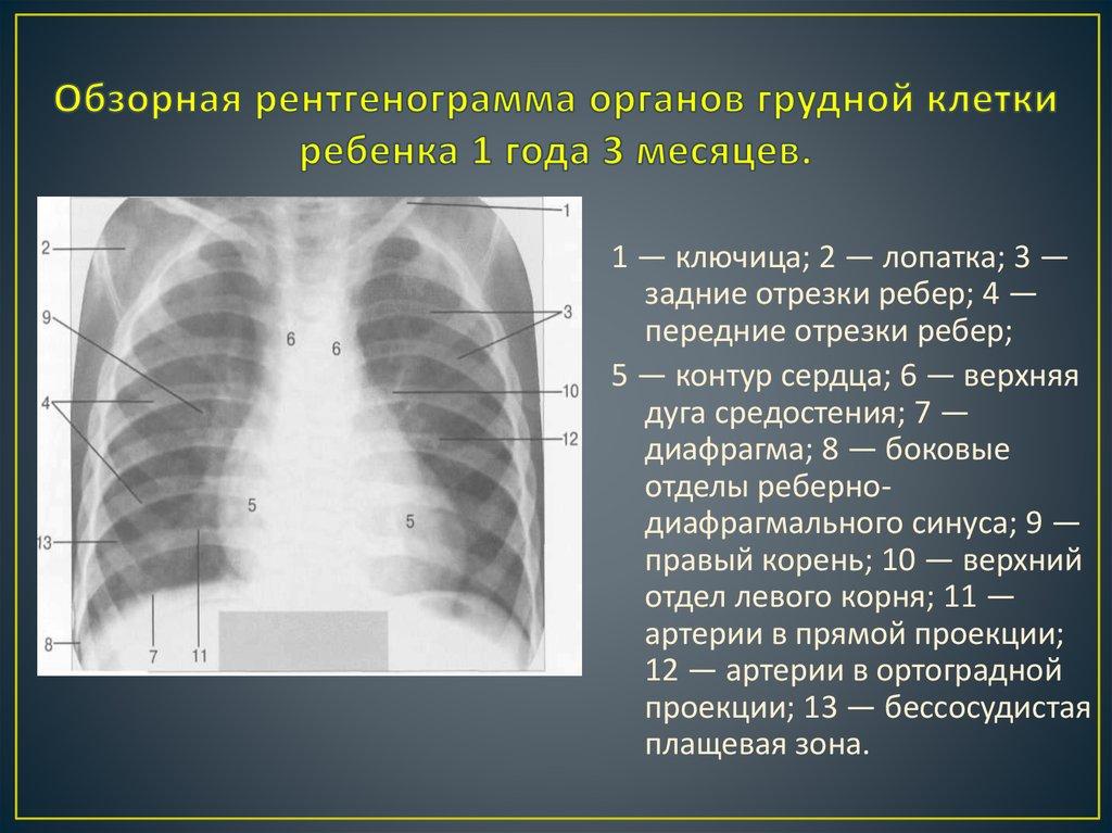 Почему беспокоит боль в грудной клетке посередине?