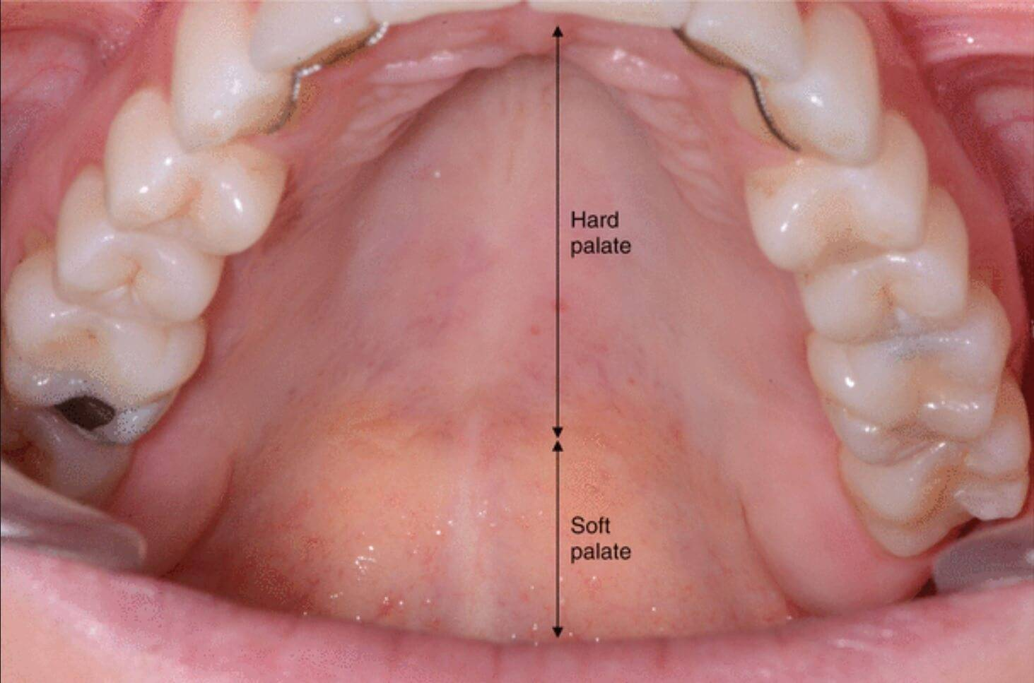 Что такое альвеолы зубов и зачем они нужны во рту, где находятся и как выглядят на отзывы? - медработник