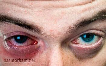 Фронтит - симптомы, лечение, причины болезни, первые признаки