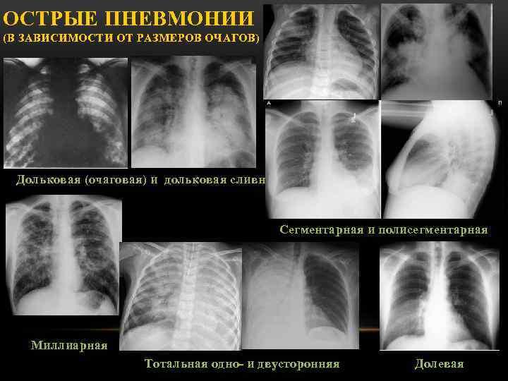 Полисегментарная пневмония, ответы врачей, консультация