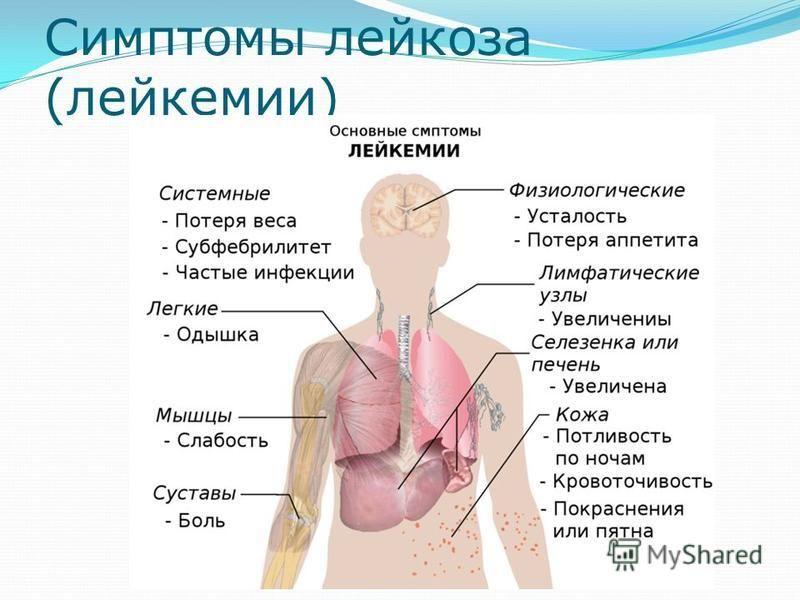 Лейкоз крови: виды и классификация, причины, симптомы, лечение