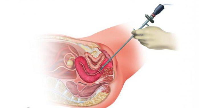 Что такое гистероскопия матки, для чего и как проводится