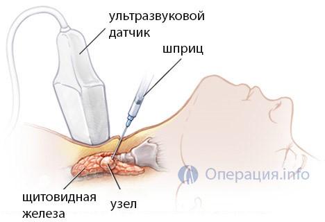 Как и для чего берется пункция спинного мозга