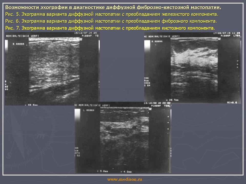 Фиброзная мастопатия - лечение, симптомы, причины, диета