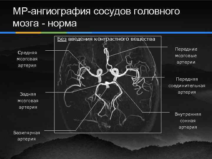 Как проводится ангиография сосудов головного мозга