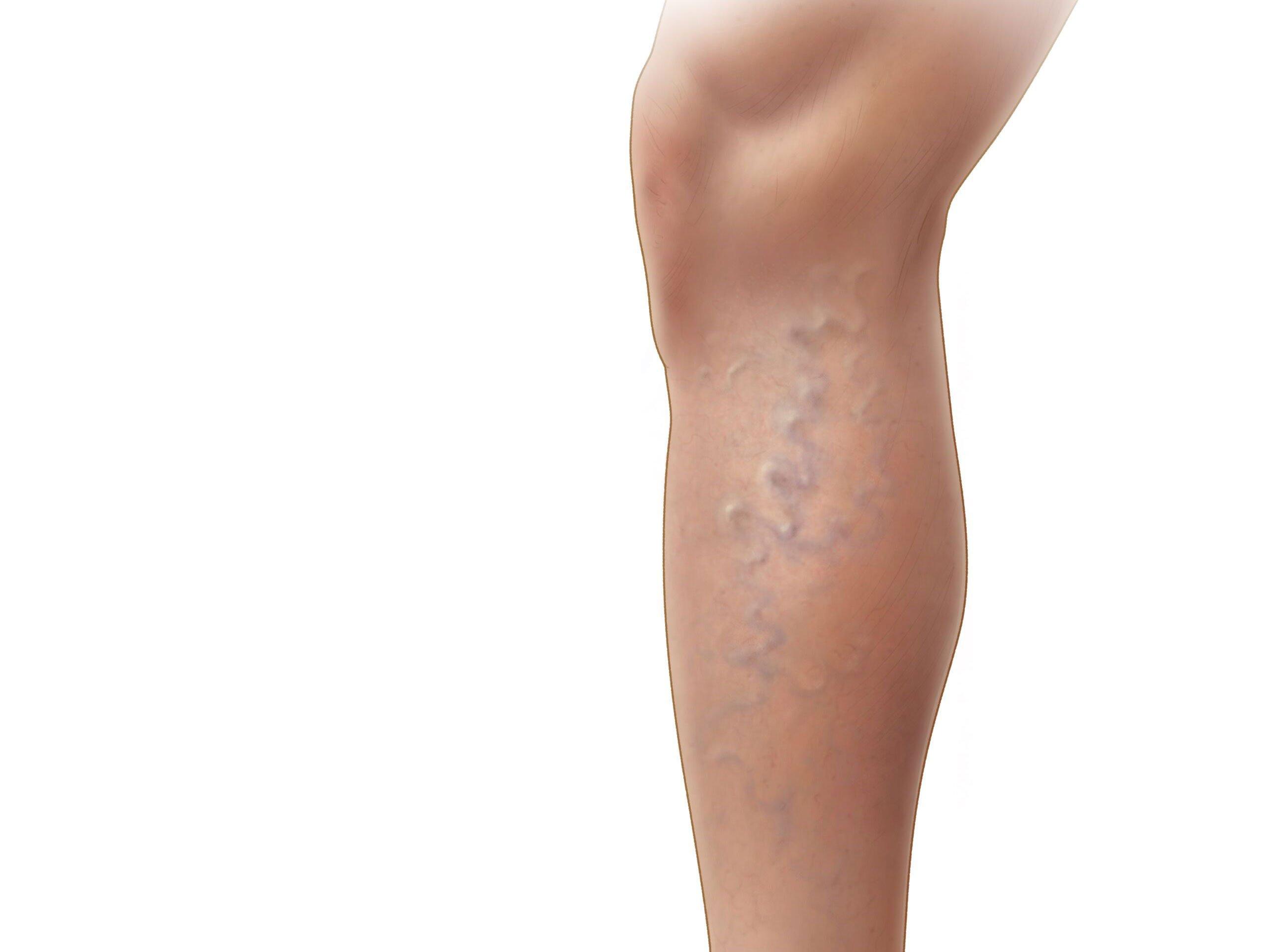 15 опасных признаков тромба в организме, который может вас мгновенно убить