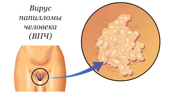 Что такое папиллома - какие виды бывают и как лечить