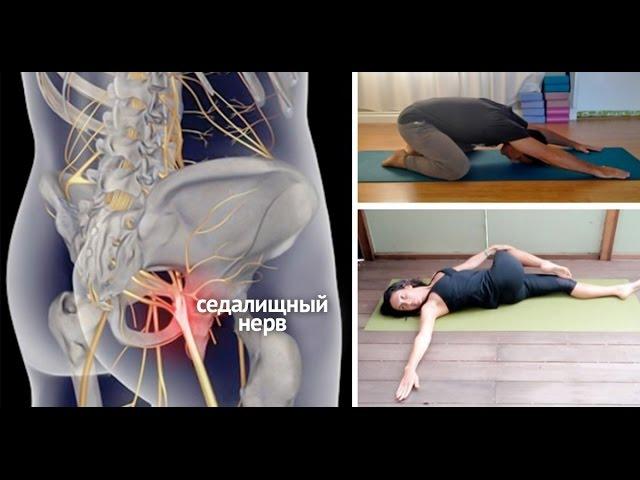 Седалищный нерв: симптомы и лечение в домашних условиях, диагностика