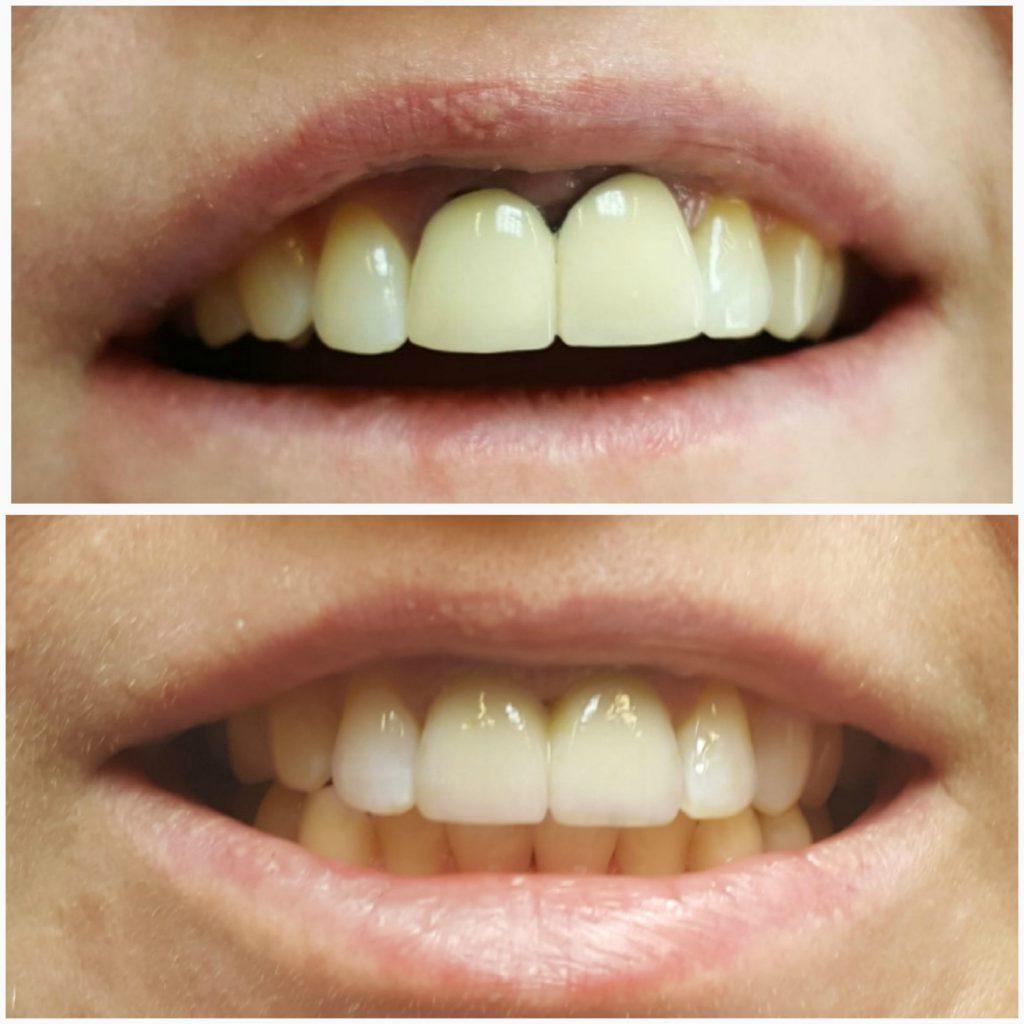 Коронки на передние зубы – какие лучше ставить, цена, отзывы, фото