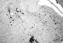 Что такое контузия головного мозга: причины, лечение и последствия