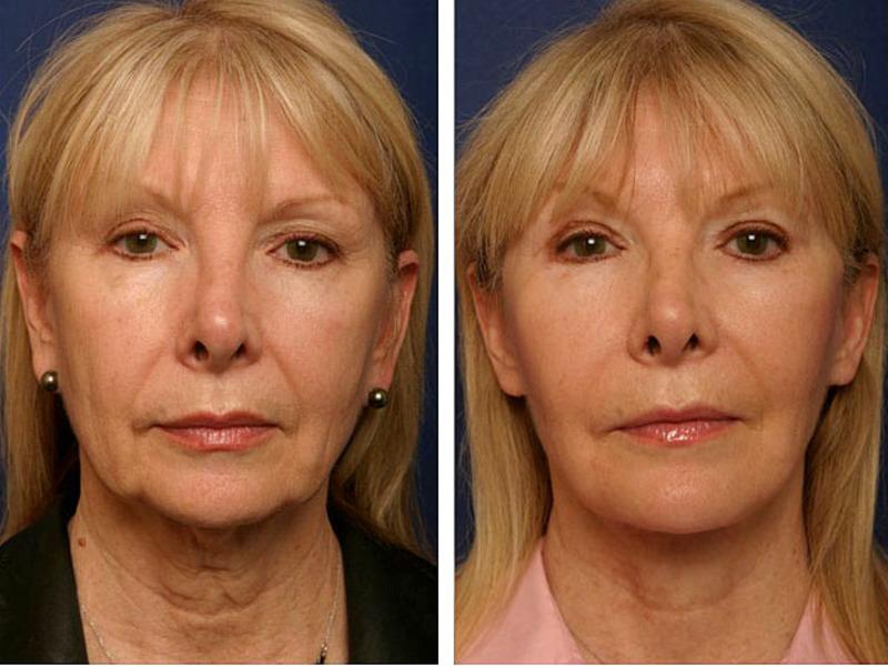 Лифтинг макияж в 50 * простые правила, техника нанесения, возрастной макияж, что это такое
