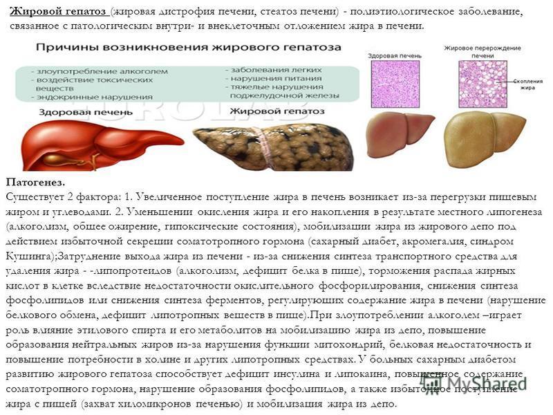 Что такое жировой гепатоз 1, 2 и 3 степени