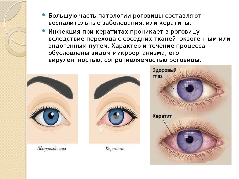 Что такое кератит глаза: симптомы и методы лечения