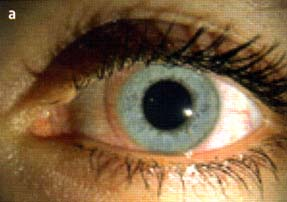 Что такое роговица глаза и как её диагностируют?