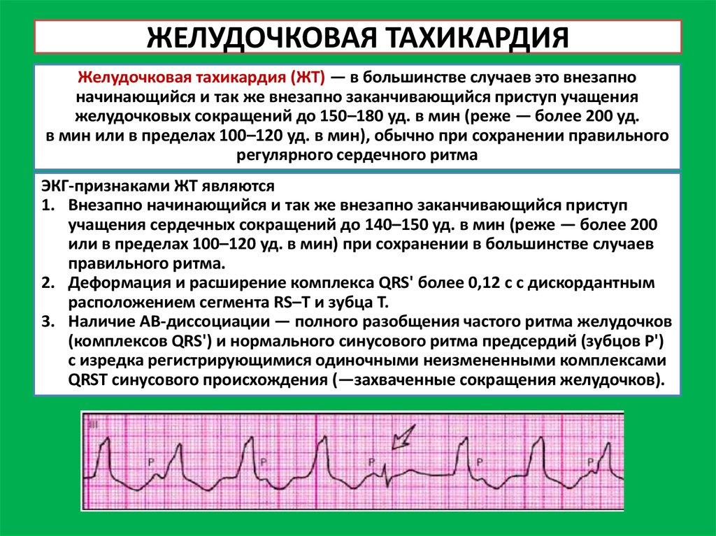 Оказание первой помощи при аритмии, симптомы и лечение