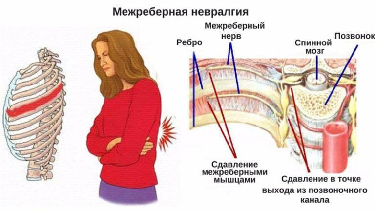 Невралгия типы, симптомы и лечение
