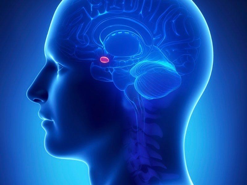 Как лечить микроаденому гипофиза и чем она опасна