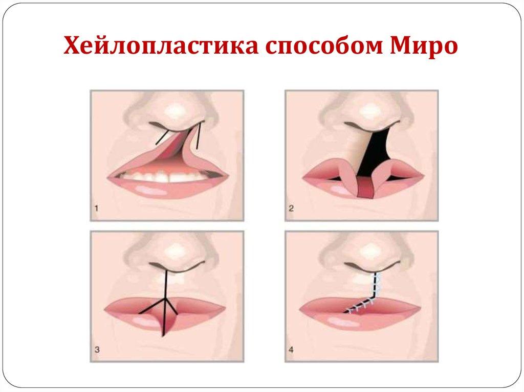 Заячья губа. причины, симптомы, пластическая операция и реабилитация :: polismed.com