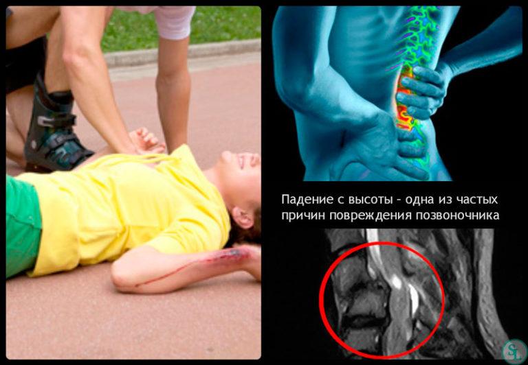 Лечение и последствия у взрослых с компрессионным переломом позвоночника грудного отдела