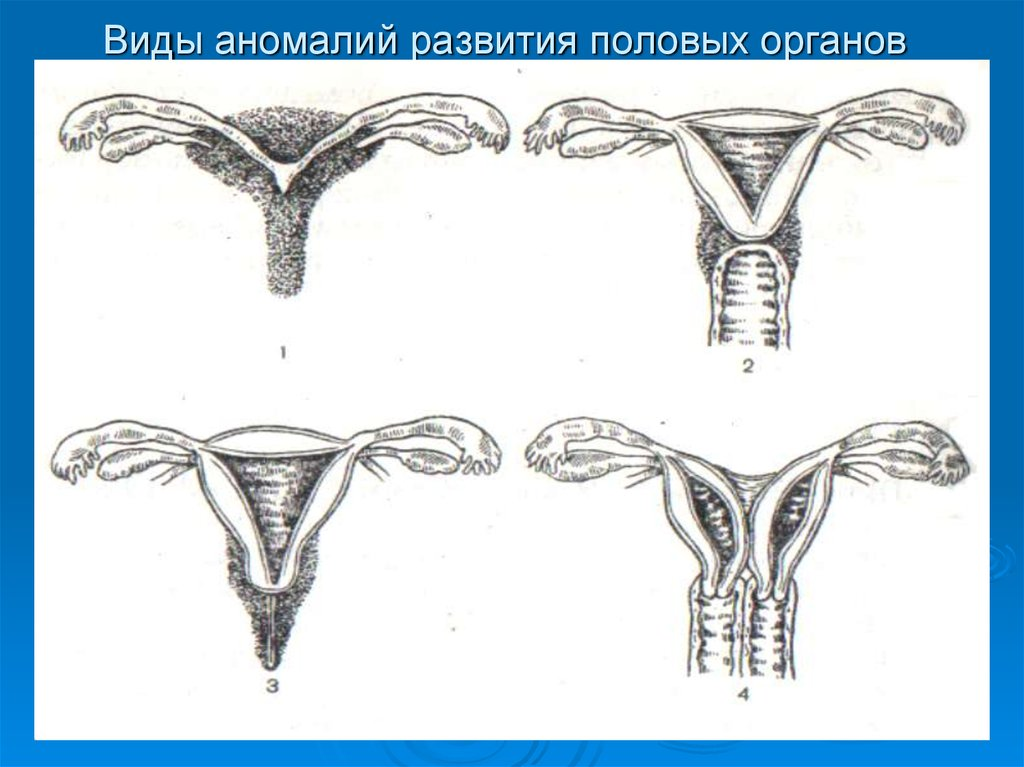 Как должны выглядеть женские половые органы? как проверить, все ли у вас в норме - центр эстетической медицины