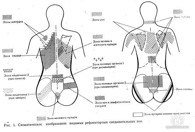 Мышечно тонический синдром шейно грудного отдела позвоночника