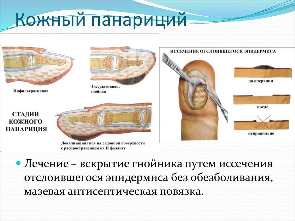Панариций — большая медицинская энциклопедия