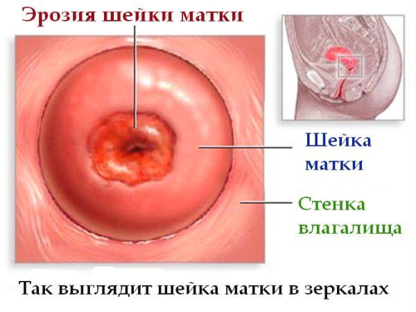 Эрозия желудка: что это такое, причины, симптомы и как лечить заболевание