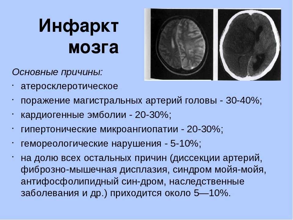 Инфаркт головного мозга: симптомы, лечение, последствия