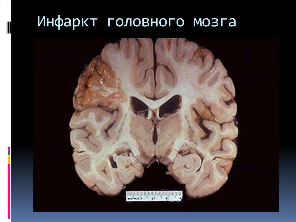 Инфаркт головного мозга: что это такое, симптомы и последствия, тактика лечения