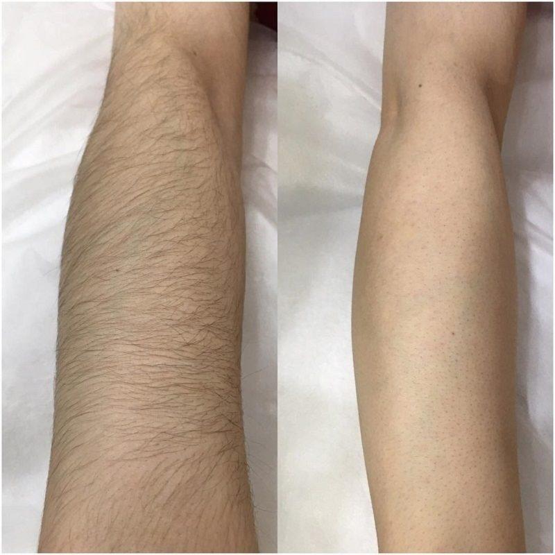 Какой лазер лучше и эффективнее для удаления волос с тела