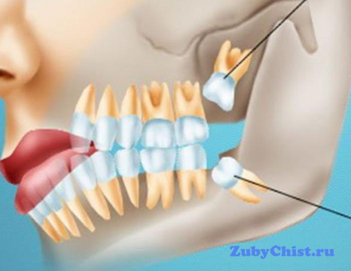 Какие симптомы указывают на то, что растет зуб мудрости, стоит ли удалять эти зубы, советы стоматологов