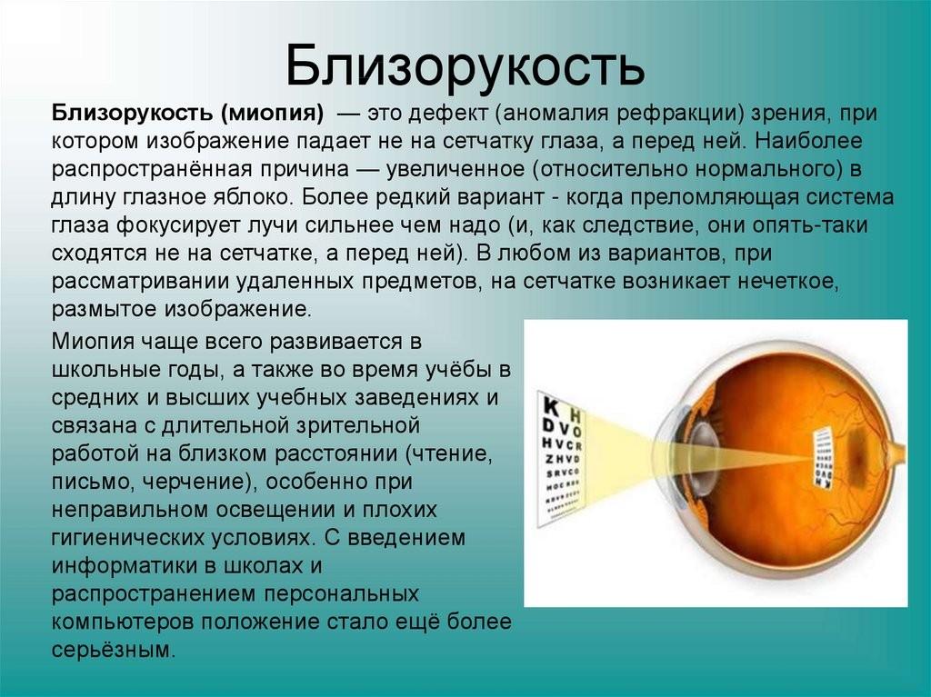 """Миопия (близорукость) 1 степени (слабой) - """"здоровое око"""""""
