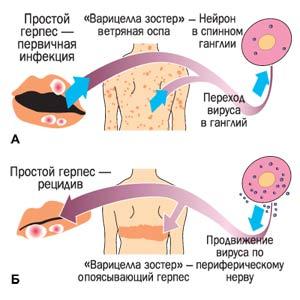 Симптомы проявлений герпеса 6 типа у ребенка