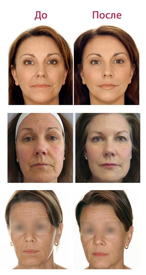 Лазерная биоревитализация лица: инъекции, фото до и после, отзывы