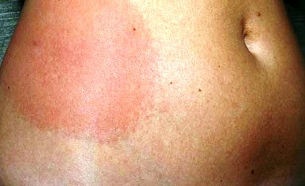 При каких инфекциях возникает зуд кожи тела? лечение зуда кожи