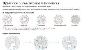 Сактосальпинкс лечение народными средствами — про венерологию