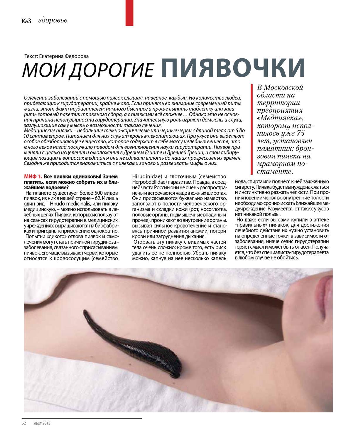 Гирудотерапия — польза и вред