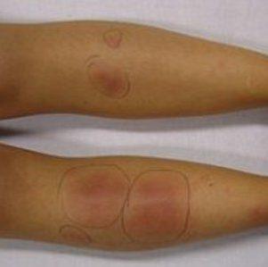 Первые признаки тромбоза артерий, вен, сосудов, лечение и прогноз выживаемости
