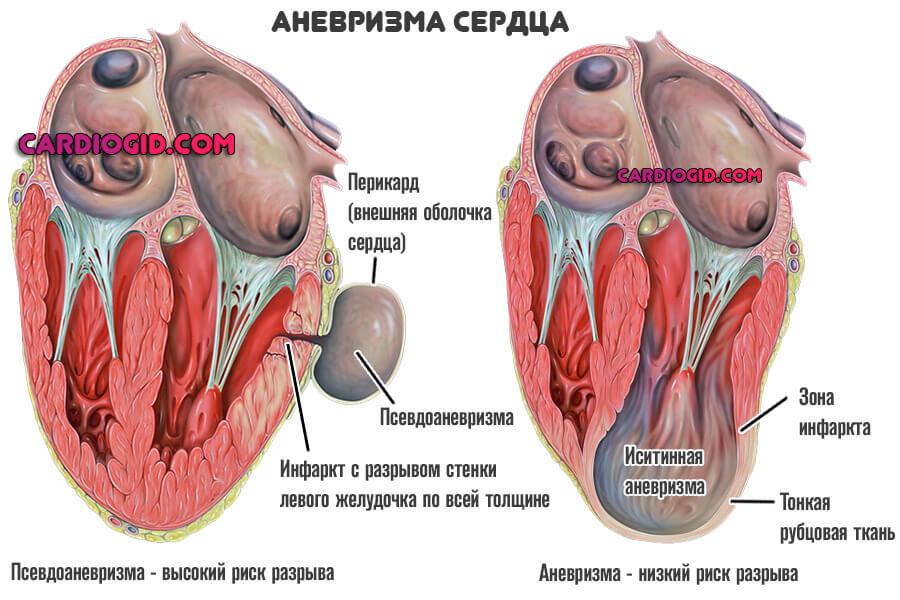 Аневризма сосудов: симптомы и признаки, причины, диагностика и лечение