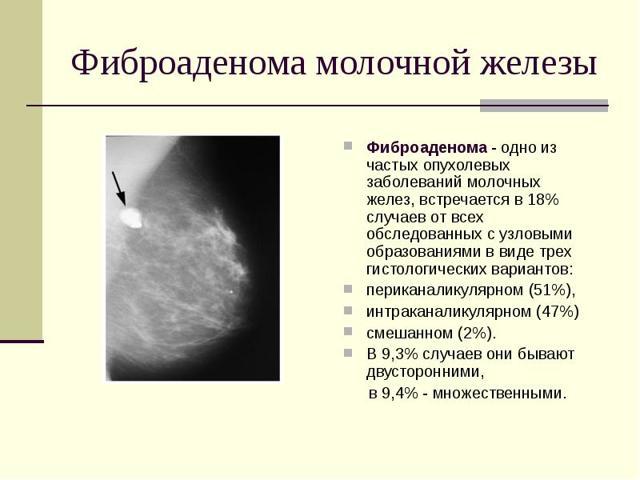 Понятие доброкачественной фибромы