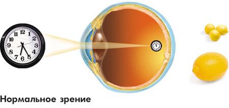 Измерение остроты зрения: причины, симптомы и лечение в москве