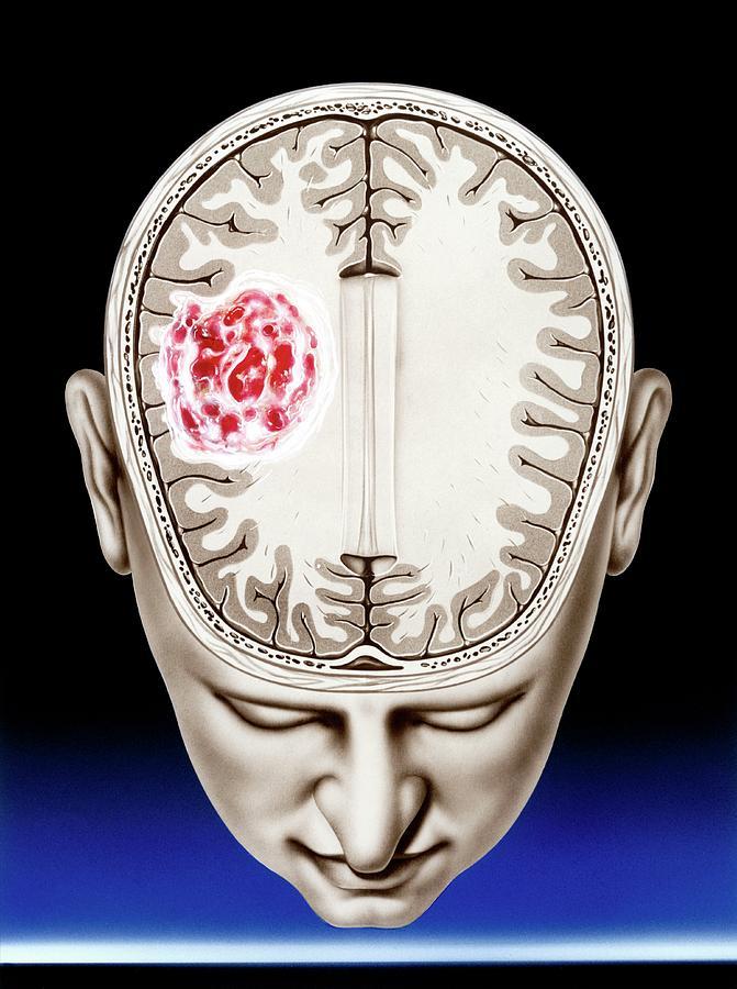 Глиобластома головного мозга – сколько можно прожить после неутешительного диагноза?