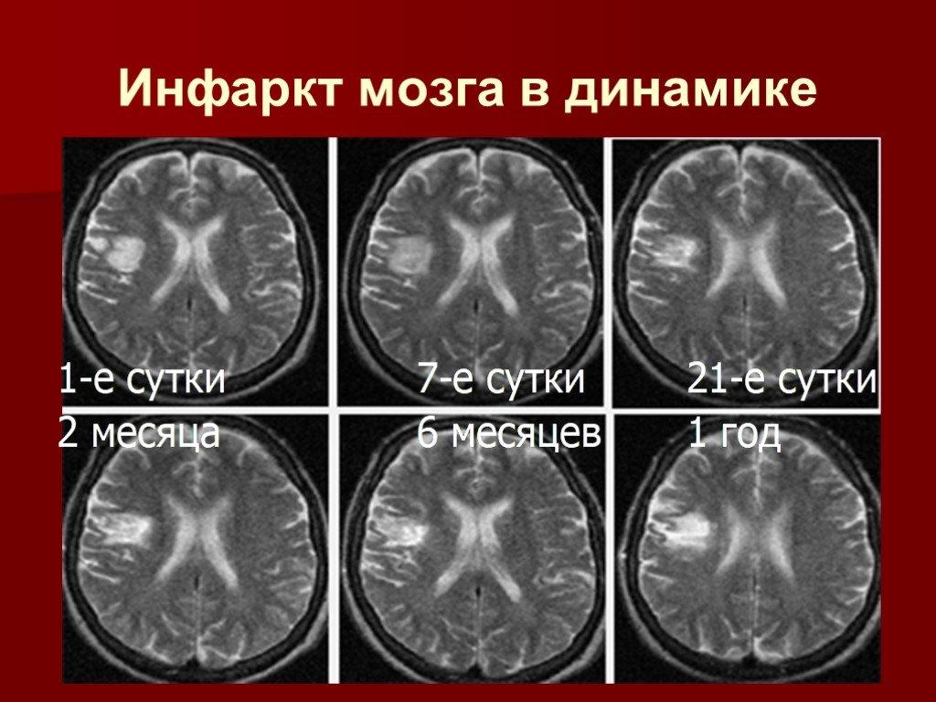 Инфаркт головного мозга: причины и симптомы заболевания