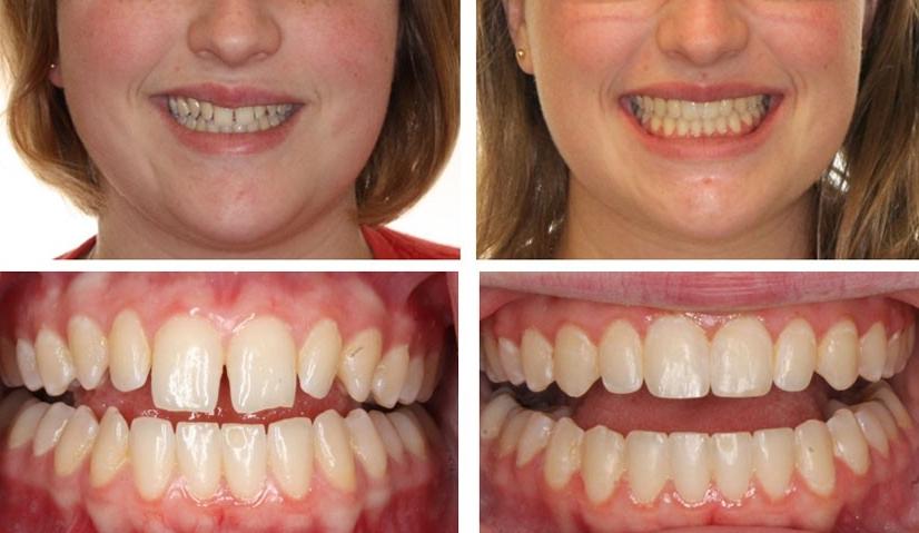 Трейнеры для зубов: что такое, виды, этапы изготовления и подбора | «вита-стом»