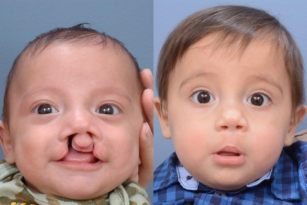 Почему рождаются дети с заячьей губой: фото и причины возникновения