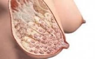 Фиброзно жировая инволюция молочных желез: симптомы и лечение - здоровая жизнь