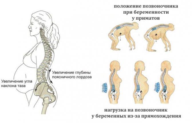 Симфизит при беременности | симптомы и лечение симфизита во время беременности | компетентно о здоровье на ilive