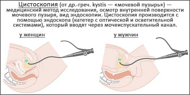 Цистоскопия – как проводится