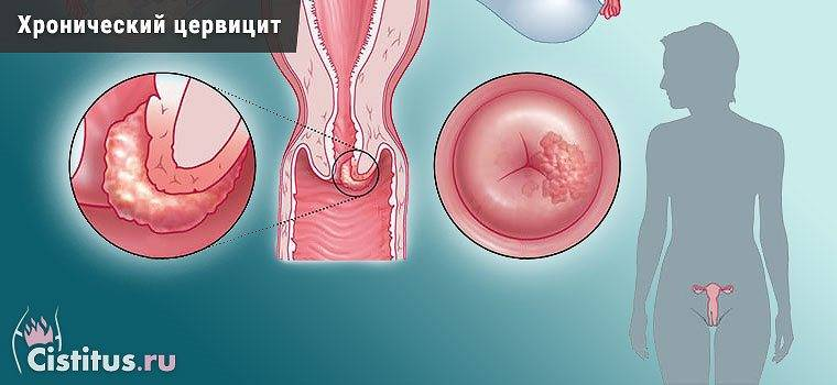 Эндоцервицит шейки матки - что это за болезнь, как ее лечить